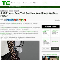 A 3D Printed Cast That Can Heal Your Bones 40-80% Faster