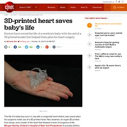 3D-printed heart saves baby's life - CNET
