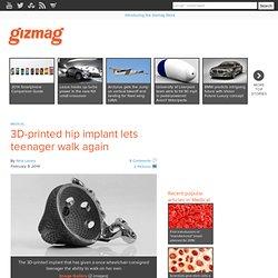 3D-printed hip implant lets teenager walk again