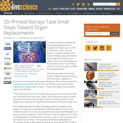 3D-Printed Kidneys Take Small Steps Toward Organ Replacements