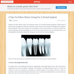 4 Tips To Follow Before Going For A Dental Implant