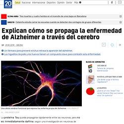 Cómo se propaga la enfermedad de Alzheimer a través del cerebro