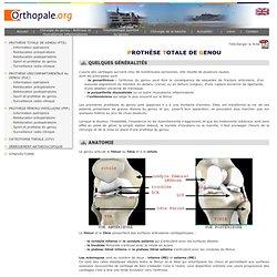 Prothese totale du genou PTG
