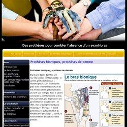 Prothèses bioniques, prothèses de demain - TPE les Prothèses