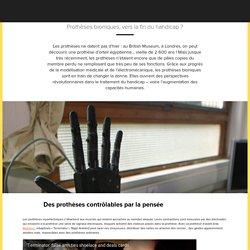 Prothèses bioniques, vers la fin du handicap ?