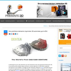 Des prothèses dentaires imprimées en 3D validées par la FDA