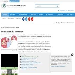 Qu'est ce que le cancer du poumon ?