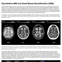 Quantitative MRI & voxel-based quantification (VBQ)