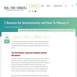 3 Reasons for Autoimmunity and How To Manage It – Real Food Forager