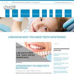 6 Reasons Why You Need Teeth Whitening - Churchill Dental Studio