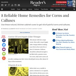 8 Home Remedies for Corns and Calluses