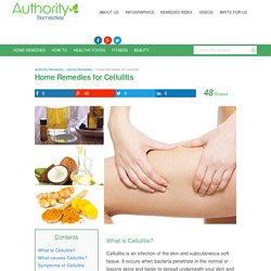 Home Remedies for Cellulitis - Authority Remedies