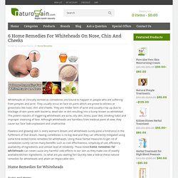 6 Home Remedies For Whiteheads On Nose, Chin And Cheeks