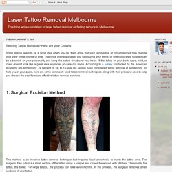 Laser Tattoo Removal Melbourne: Seeking Tattoo Removal? Here are your Options