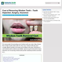 Cost Of Removing Wisdom Teeth