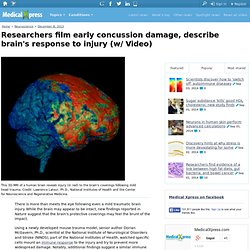 Researchers film early concussion damage, describe brain's response to injury (w/ Video)