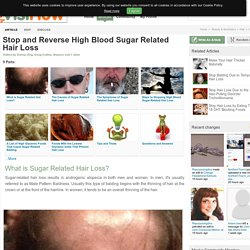 Stop and Reverse High Blood Sugar Related Hair Loss - VisiHow