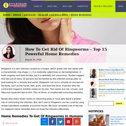 How To Get Rid Of Ringworms – Top 15 Powerful Home Remedies