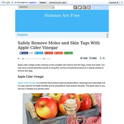 Safely Remove Moles and Skin Tags With Apple Cider Vinegar