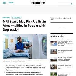 MRI Scans Pick Up Brain Abnormalities of Depression
