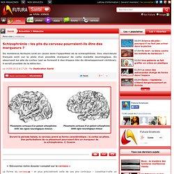 Schizophrénie : les plis du cerveau pourraient-ils être des marqueurs ?