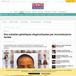 Des maladies génétiques diagnostiquées par reconnaissance faciale - Sciencesetavenir.fr