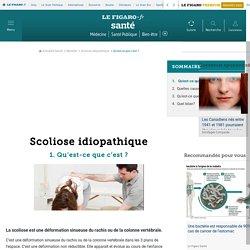 Scoliose idiopathique - Qu'est-ce que c'est ? - Fiches santé et conseils médicaux