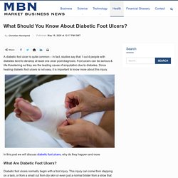 What Should You Know About Diabetic Foot Ulcers?