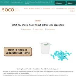 What You Should Know About Orthodontic Separators