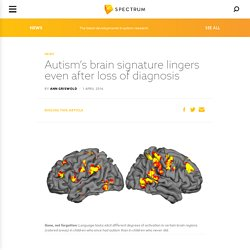 Autism's brain signature lingers even after loss of diagnosis