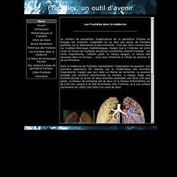 site TPE fractale