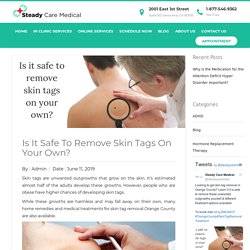 Skin Tag Removal Orange County - Is It Safe?