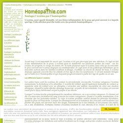 Soigner l'eczéma avec l'homéopathie