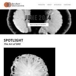 SPOTLIGHT: The Art of MRI - SCIART MAGAZINE