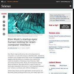 Elon Musk's startup eyes human testing for brain-computer interface