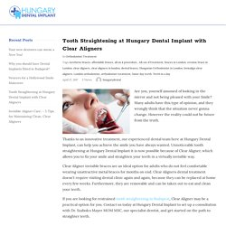 Tooth Straightening at Hungary Dental Implant with Clear Aligners