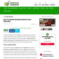 How To Get Rid Of Stretch Marks Fast & Naturally?