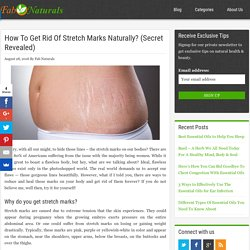 How to Get Rid of Stretch Marks Naturally with Essential Oils