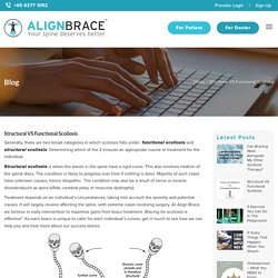 Structural VS Functional Scoliosis – Align Brace