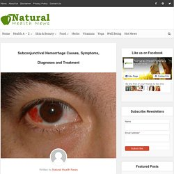 Subconjunctival Hemorrhage Causes, Symptoms, Diagnoses and Treatment