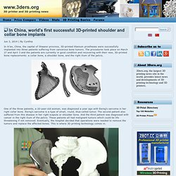 In China, world's first successful 3D-printed shoulder and collar bone implants
