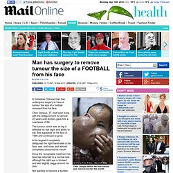 Man has surgery to remove tumour the size of a FOOTBALL from his face