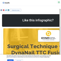 Surgical Technique Guide Using DynaNail TTC Fusion System