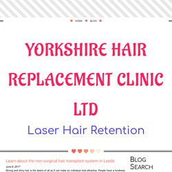 Learn about the non-surgical hair transplant system in Leeds