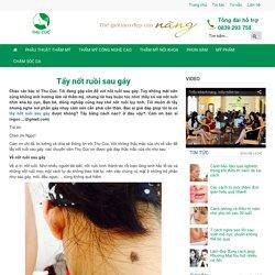 Tẩy nốt ruồi sau gáy-Thu Cúc Sài Gòn