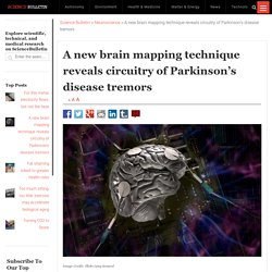 A new brain mapping technique reveals circuitry of Parkinson's disease tremors