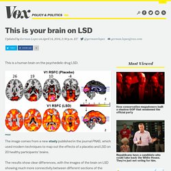 This is your brain on LSD