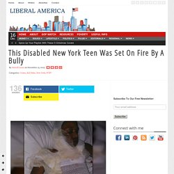 This Disabled New York Teen Was Set On Fire By A Bully