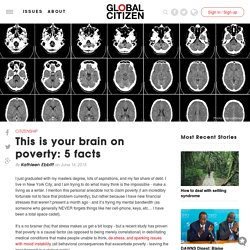 This is your brain on poverty: 5 facts