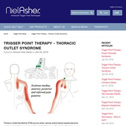Trigger Point Therapy - Thoracic Outlet Syndrome – Niel Asher Healthcare
